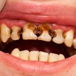 Постер, плакат: Destructed teeth