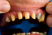 Buffed teeth - prostetic rehabilitation — Stock Photo