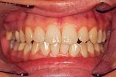 Menselijke tanden — Stockfoto