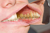 Dental braces on teeth - orthodontic treatment — Stock Photo