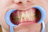 Congestioned teeth — Stock Photo