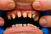 Buffed teeth - prosthetic rehabilitation — Stock Photo