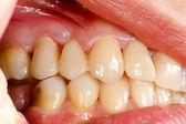 Pressionado cerâmicos dentes na cavidade oral — Foto Stock