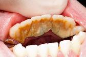 Massiva tandsten och plack — Stockfoto
