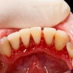 ������, ������: Dentist examining sick mouth