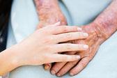 Cuidado de los ancianos — Foto de Stock