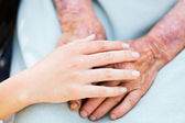 Elderly Care — Photo