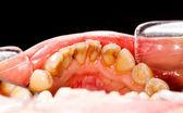 налета на зубах — Стоковое фото