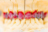 Wax Denture — Stock Photo
