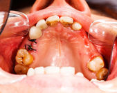 Stitches after Dental Extraction — Stock Photo