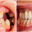 Stock Photo: Teeth before and after treatment