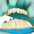 Постер, плакат: Porcelain teeth dental bridge