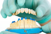 Porcelain teeth - dental bridge — Stock Photo