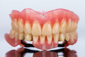 Dental skelett protes - framifrån — Stockfoto