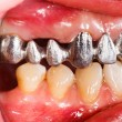 Metal Basis Dental Bridge — Stock Photo