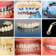 Technical steps of dental bridge — Stockfoto