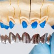 Stock Photo: Dental Crown