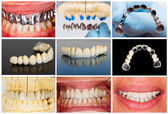 Technical steps of dental bridge — Stock Photo