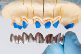 Dental Crown — Stock Photo