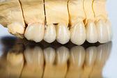 Lateral vew of dental bridge — Stock Photo
