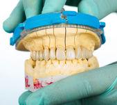 Porcelain teeth - dental bridge — Stock Photo