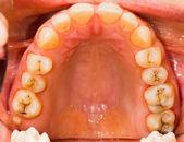 Patient's denture — Stock Photo