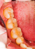 Molar Teeth — Стоковое фото
