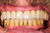 Zubní korunky a můstky — Stock fotografie
