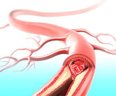 Atherosclerosis in artery caused by cholesterol plaque — 图库照片