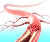 动脉粥样硬化的动脉引起胆固醇斑块 — 图库照片