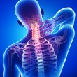 X-ray of neck pain — Stock Photo