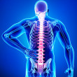 Royalty-Free Stock Photo: Male spine pain