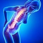 Female back pain — Stock Photo #22673081