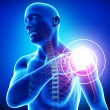 Shoulder pain — Foto Stock