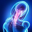 X-ray of neck pain female — Stock Photo