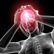 Female brain pain — Stock Photo