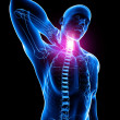 Stock Photo: X-ray of spine pain