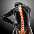 Stock Photo: Female spine pain