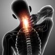 Stock Photo: X-ray of neck pain