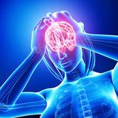 Mavili kadın beyin ağrı — Stok fotoğraf
