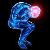 Brain pain anatomy — Stock Photo