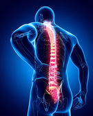 Male spine pain — Stock Photo