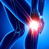 Female knee pain in blue — Stock Photo