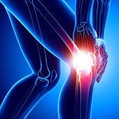 Vrouwelijke kniepijn in blauw — Stockfoto