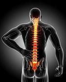 Back pain anatomy — Stock Photo