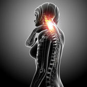Anatomy female spine pain — Stock Photo