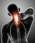 X-ray of neck pain — Stock Photo