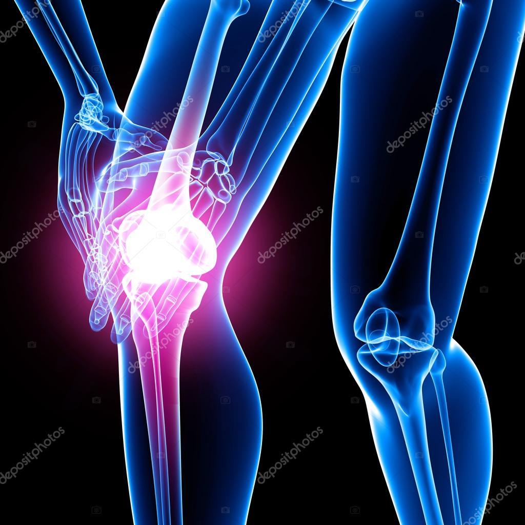 女性膝关节疼痛