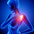 Illustration of shoulder highlighted shoulder pain - Stockfoto