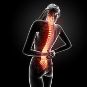 Illustration of human back pain with highlighted spinal cord — Stock Photo